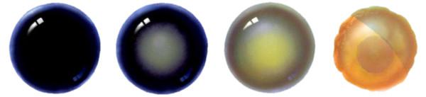 Стадии катаракты: Нормальный хрусталик, незрелая катаракта, зрелая и перезрелая.